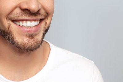 Witte tanden (2)
