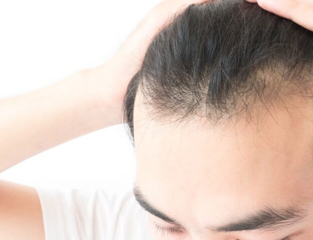 Tips voor mannen met dun haar